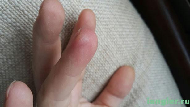 обмороженный палец